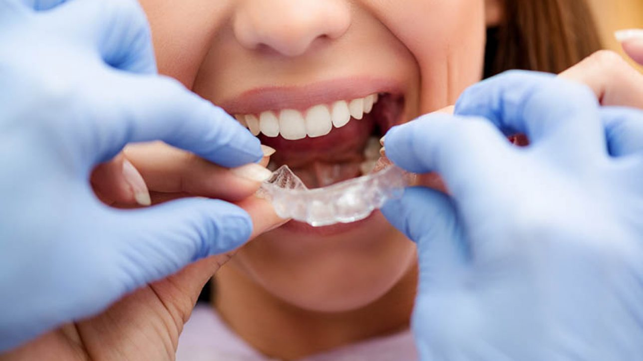 Role in Post Orthodontic Treatment